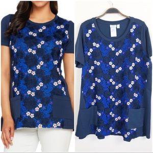 •LOGO• Lounge Blue Short Sleeve Top Lace Overlay